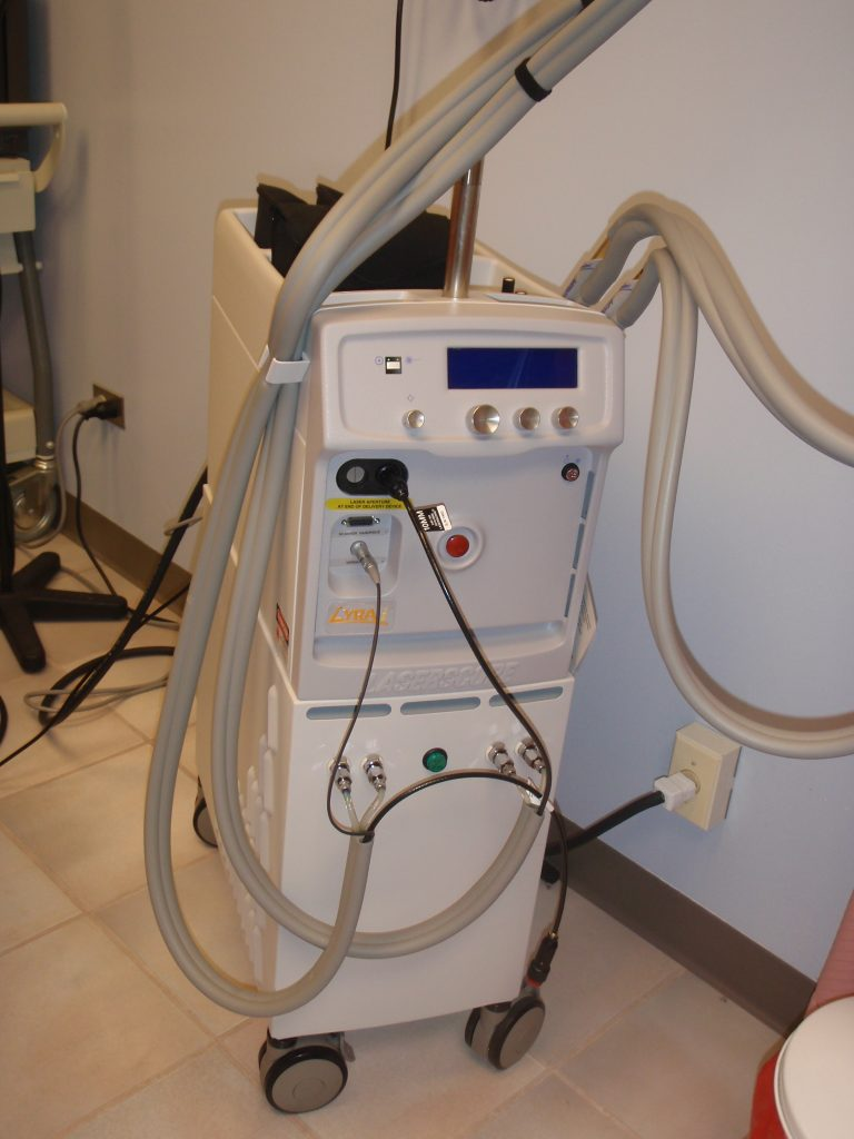 2004 Laserscope Lyra I Parts System Medical Laser